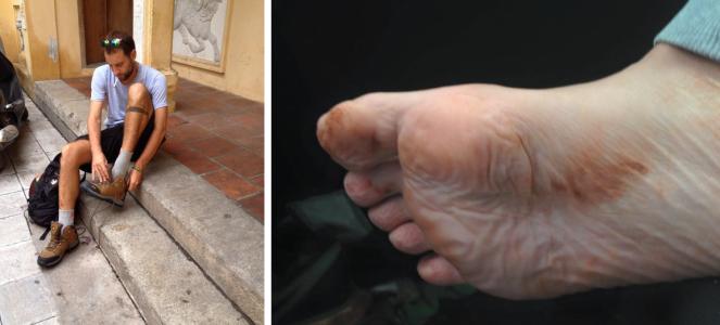 mal pieds